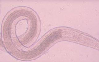 Энтеробиоз: причины, симптомы, лечение, профилактика